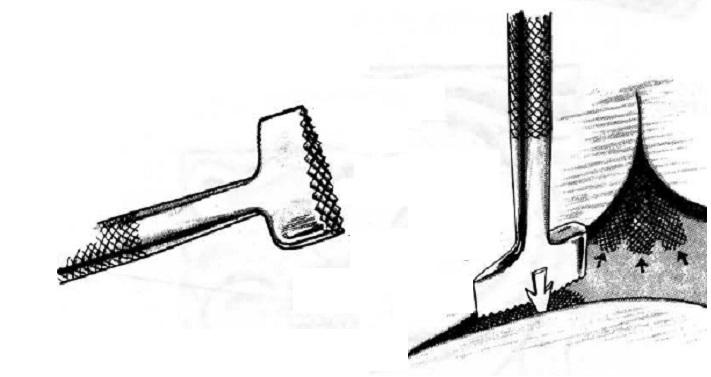 Бэкграундер штамп для кожи